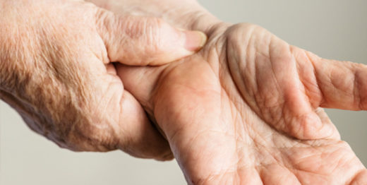 Are You At Risk of Developing Carpal Tunnel Syndrome?