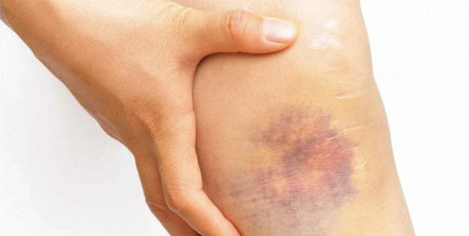 How To Manage Bumps and Bruises